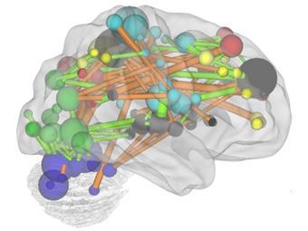 Схема связей между отделами мозга: оранжевый цвет - укрепляющиеся с возрастом, зеленый - ослабевающие. Иллюстрация авторов исследования