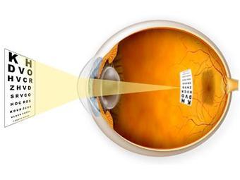 Иллюстрация с сайта austincountyeye.com